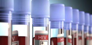 Teste de HIV feito pel CEDLABS laboratório ajuda a salvar vidas.